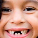 Chiêm bao thấy bị gãy răng đánh số mấy? – Ý nghĩa giấc mơ gãy răng